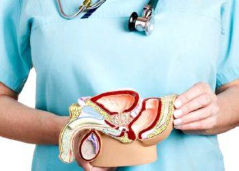câncer de próstata 1